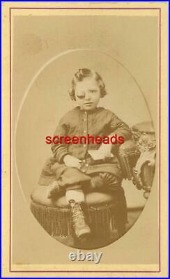 1800s RARE MEDICAL FREAK CDV PHOTO Boy With Large Eyeball VG