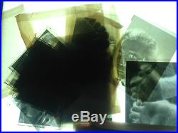 Vintage Photograph Medical Skin Disease dermatology VERY GRAPHIC LOT